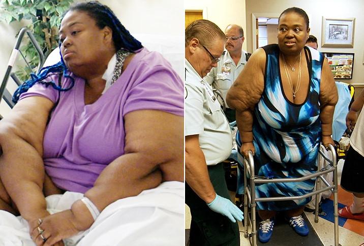 Alli diet pills results photo 9